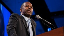 I Called Out Ben Carson on His 'Siamese Twins' Line