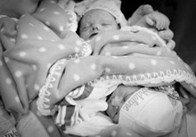 Are Birth Defects Really Part of God's Plan?